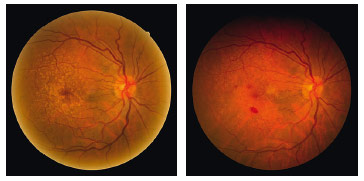 Colour fundus photographs