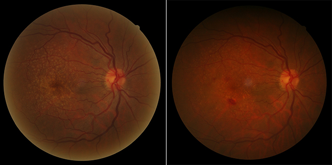 Example of a very-high-risk patient with untreated AMD in one eye and drusen and pigmentary alterations in the other eye.