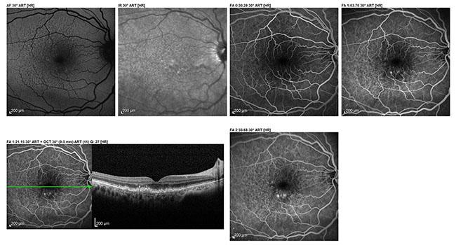 Fluorescein retinal aniograph
