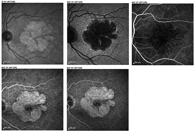 Angiography of atrophic AMD