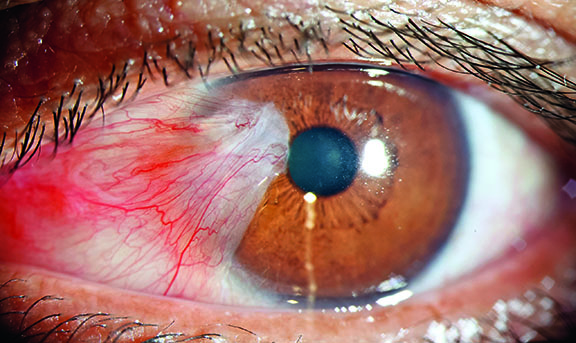 Clinical aspect of pterygium
