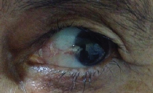 Patients with Pterygium