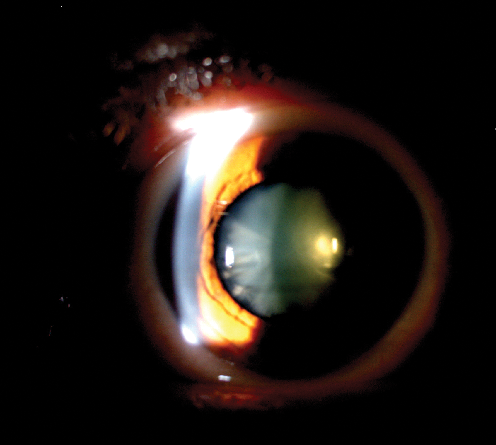 Cataract, besides progressive low vision a great source of intraocular glare.
