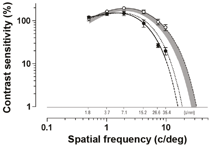 The contrast sensitivity loss in high myopia occurred at high (but not low) spatial frequencies.