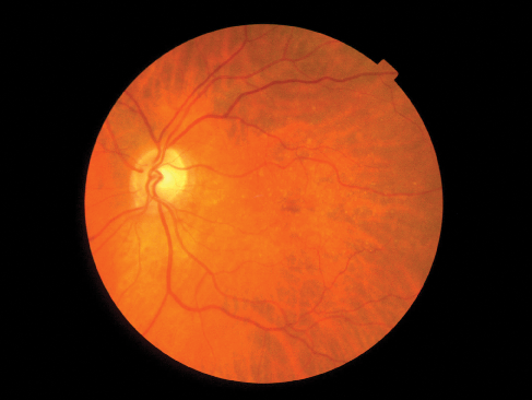 Color fundus photograph from a patient with AMD, depicting  the presence of drusen