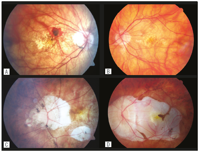 Photographs showing pathological changes on the fundus of four highly myopic eyes