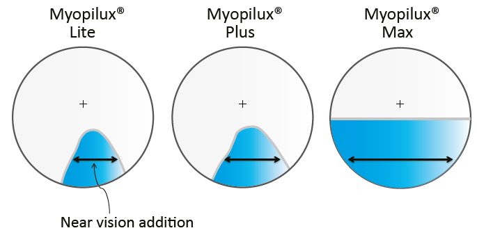 Near vision zone for Myopilux® Lite (left), Myopilux® Plus (center) and Myopilux® Max (right)
