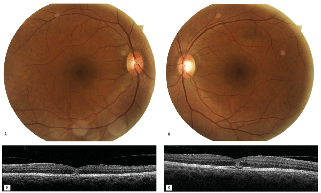 retinography with yellow lesions at both foveas