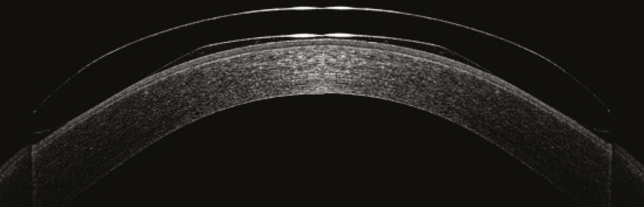 OCT view of Reverse Geometry Orthokeratology lens on the Cornea
