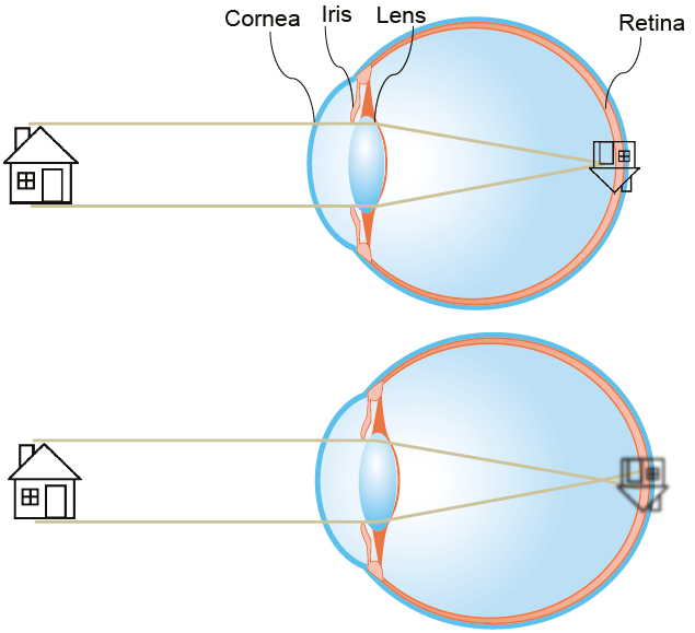 Emmetropic (top) and myopic (bottom) eyes