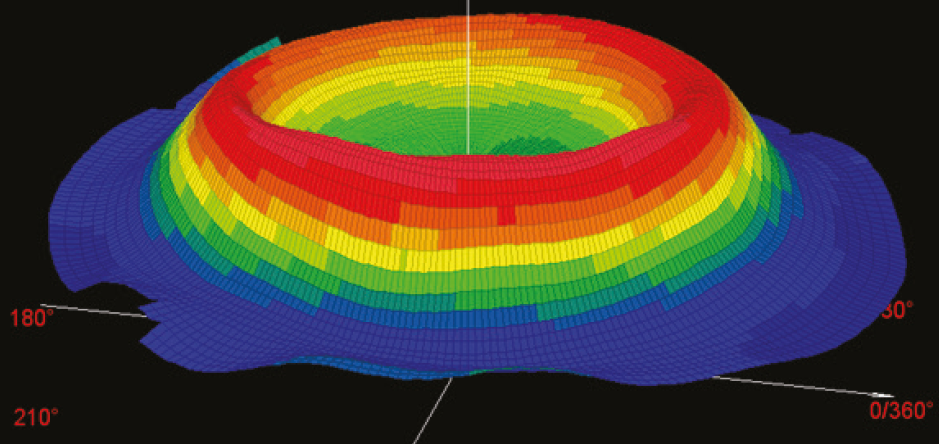 Topographical perspective view of post Ortho-K cornea.