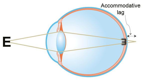 The accommodative lag in near vision tasks