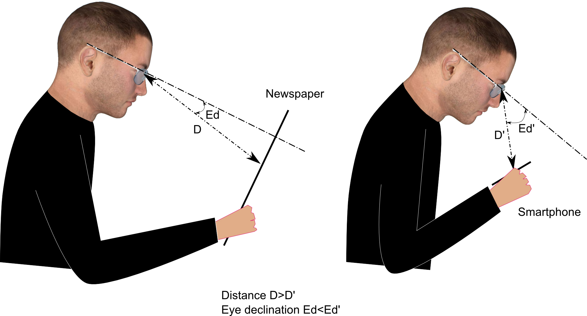 Comparison of reading distances and eye declination angles between a paper  medium and a digital screen