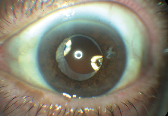 Retinal Light Exposure After Cataract Surgery What Are The Risks