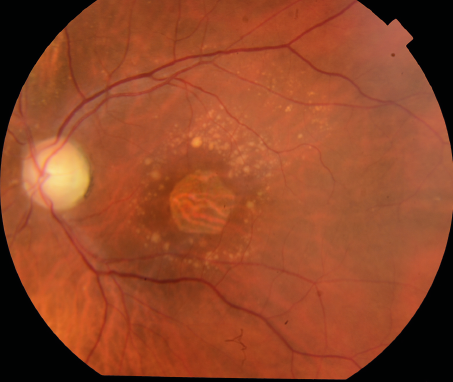 Color fundus photograph of dry age-related macular degeneration