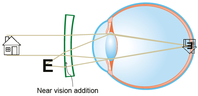 Near vision addition lenses
