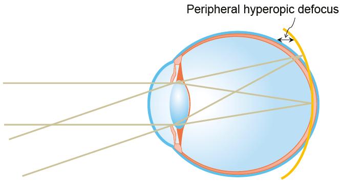Peripheral hyperopic defocus