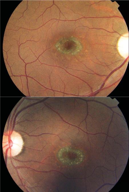 Flickering Light Eye After Cataract Surgery Shelly Lighting