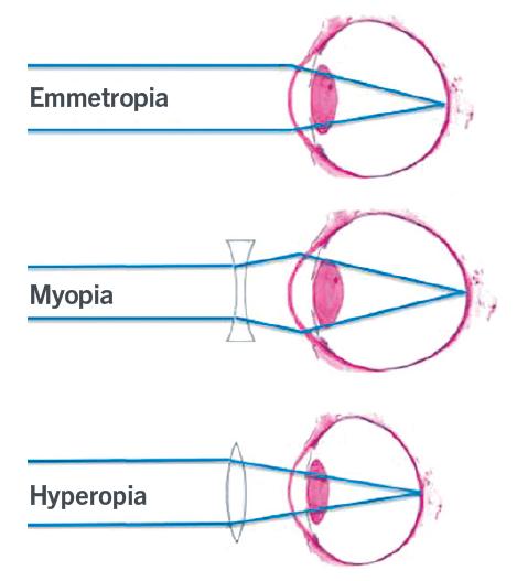 presbyopia és hyperopia a rossz látás öröklődése