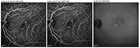 Exudative AMD with subfoveal neovasculature