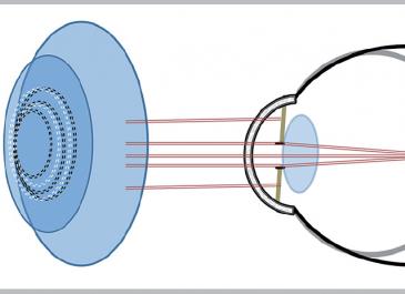 berkeley optometry board review book