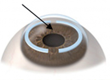 Intracorneal Rings - plastic inserts placed in the cornea which flatten the central cornea to correct low degrees of myopia